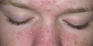 dermatite-seborreica