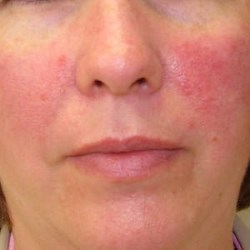 rosacea-on-face1